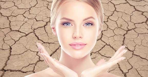 90c22367be23fe Trockene Haut in der Winterzeit – was hilft wirklich? – Skineco